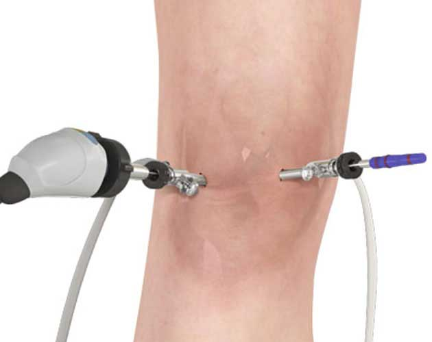 knee arthroscopy in vizag