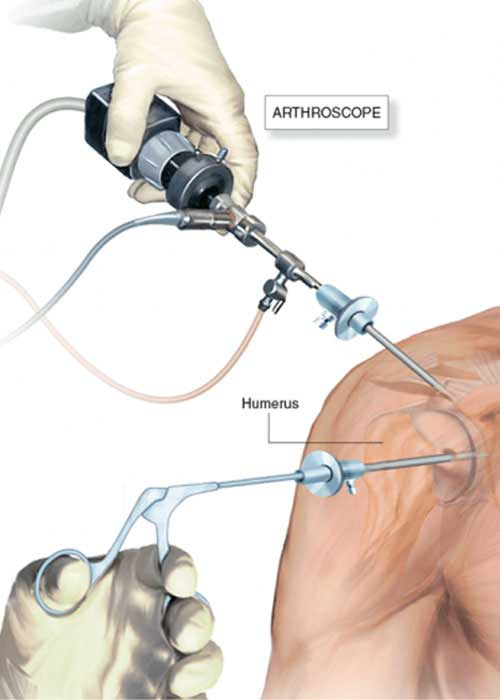 shoulder arthroscopy in Vizag